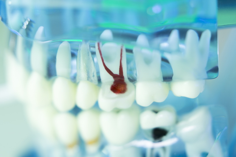Dr-Michael-Hopp-Implantologie-iStock-1125898430